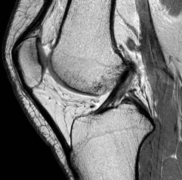 DOK legamenti_ginocchio_normali