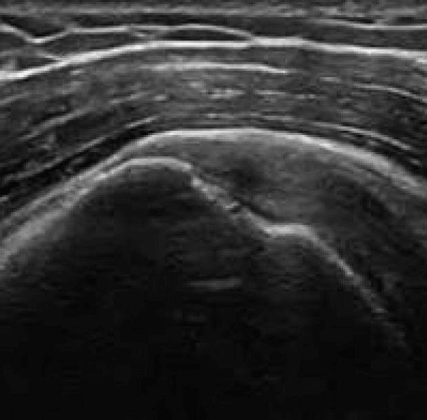 lettura-imaging-radiologia-fisioterapia
